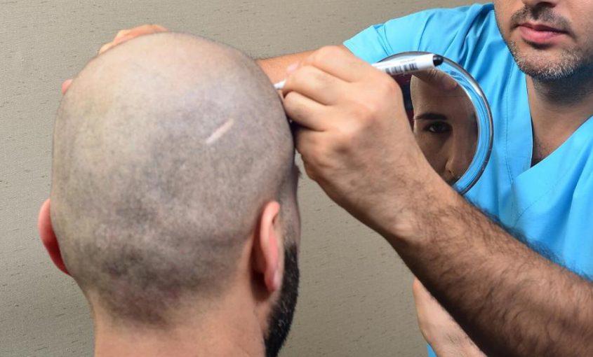 Hair-Transplant-in-Istanbul